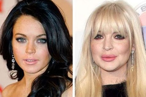 Lindsey Lohan - before and after