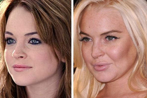 Lindsey Lohan before and after plastic surgery