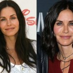 Courteney Cox before and after plastic surgery 2015