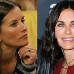 Courteney Cox before and after plastic surgery 2015 - 2