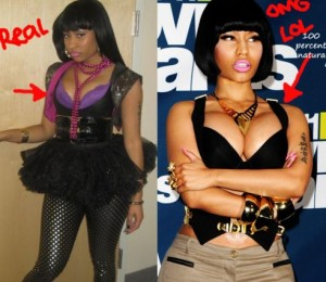 Nicki Minaj plastic surgery - Breast augmentation