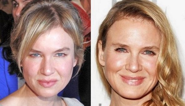 Rene Zellweger before and after plastic surgery