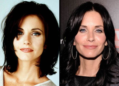 Courteney Cox before and after plastic surgery