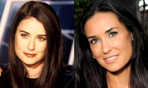 Demi Moore before and after plastic surgery