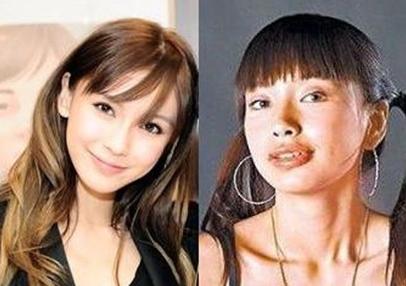 Angelababy before and after plastic surgery 01