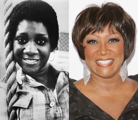 Patti Labelle before and after plastic surgery