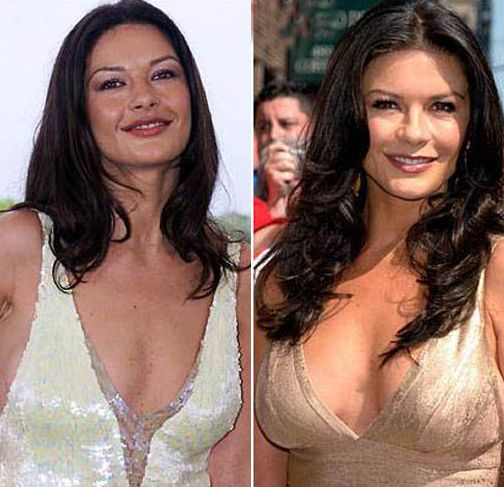 Catherine Zeta Jones before and after plastic surgery
