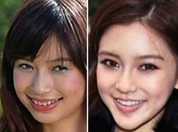 Angelababy before and after plastic surgery 52