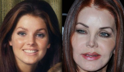 Priscilla Presley before and after plastic surgery 6