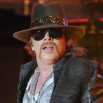 Axl Rose plastic surgery  74