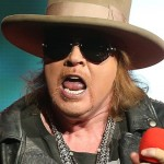 Axl Rose plastic surgery  84