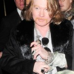Axl Rose plastic surgery  94