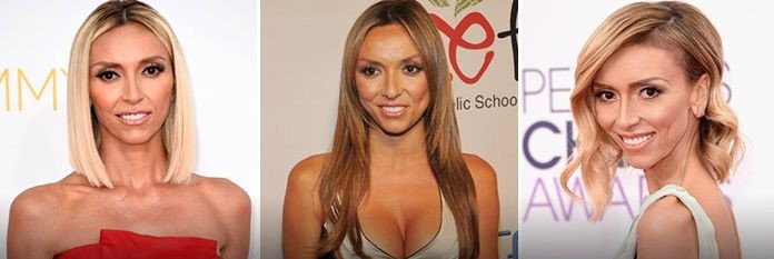 Giuliana Rancic before and after plastic surgery