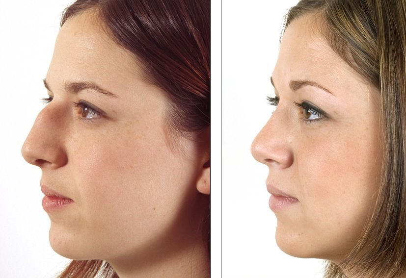 Rhinoplasty  (nose job) - before and after plastic surgery