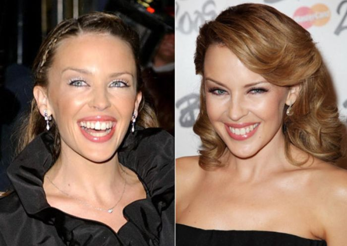Kylie Minogue plastic surgery before and after