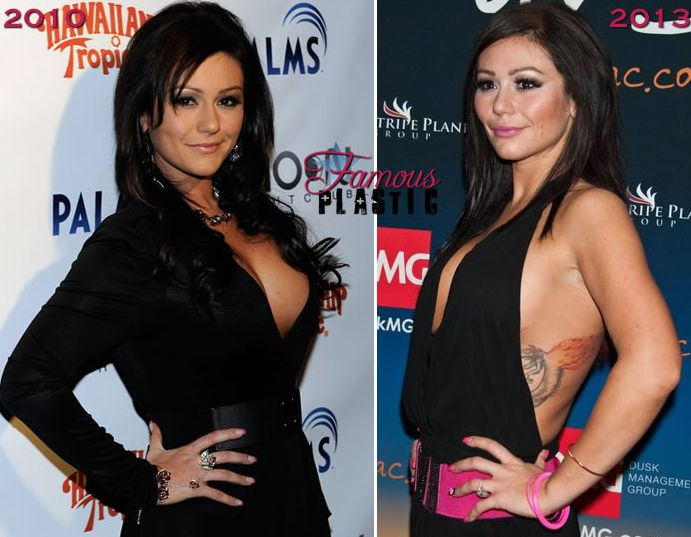 Jennifer Lynn Farley JWoww Before and after plastic surgery