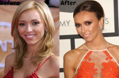 Giuliana Rancic before and after nose job and face lift