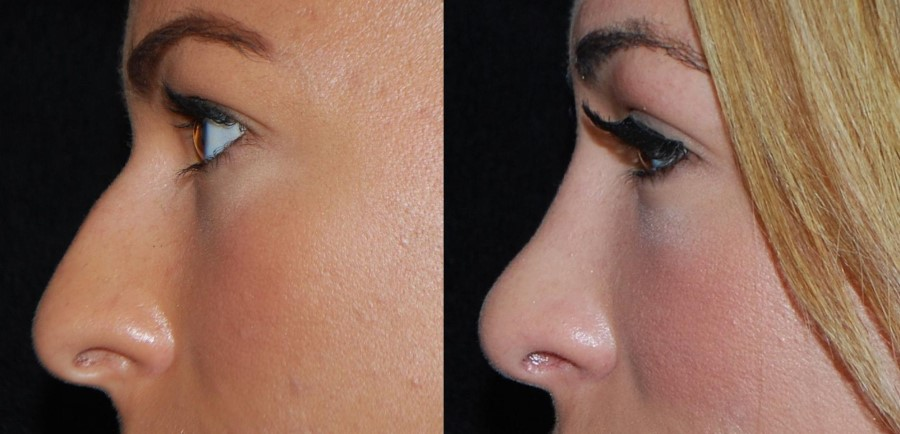 Rhinoplasty (nose job) - before and after cosmetic procedure