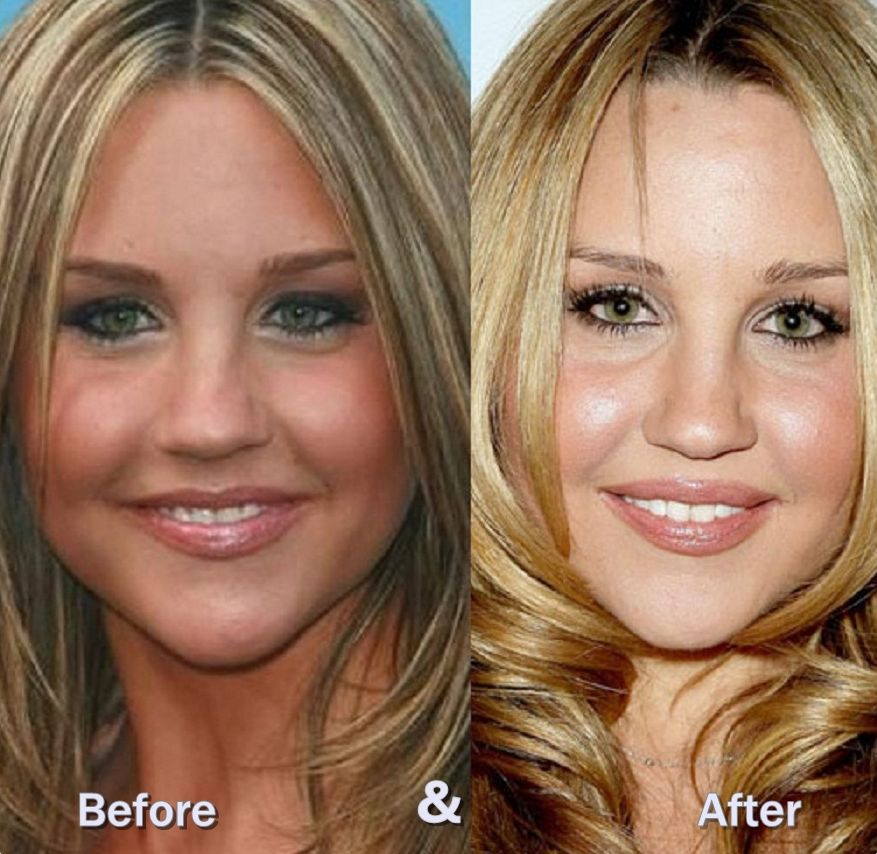 Amanda Bynes before and after plastic surgery 2