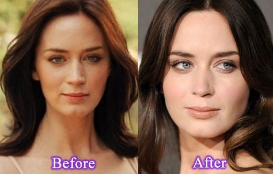 Emily Blunt before and after plastic surgery