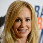 Taylor Armstrong facelift and chin implants