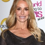Taylor Armstrong botox fillers
