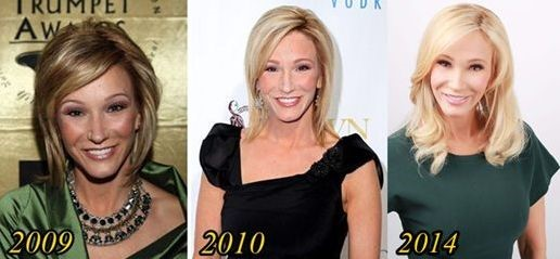 Paula White before and after plastic surgery