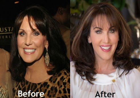 Robin McGraw before and after plastic surgery