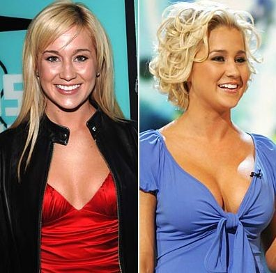 Kellie Pickler before and after breast augmentation