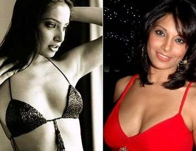 Bipasha Basu before and after plastic surgery