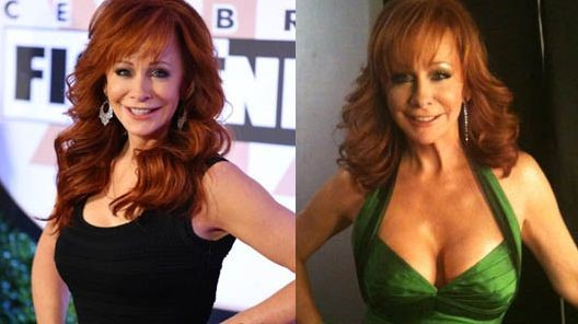 Reba McEntire before and after plastic surgery breast lift