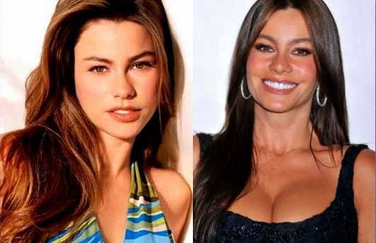 Sofia Vergara before and after plastic surgery
