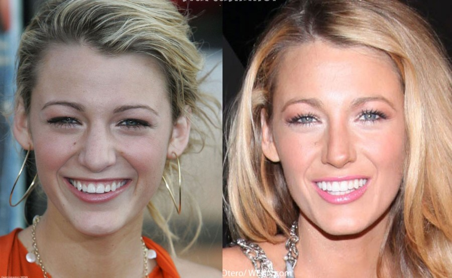 Blake Lively two minor plastic surgery procedures Blake Lively Nose