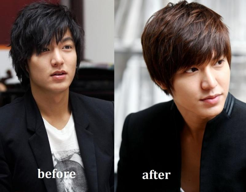 Lee Min Ho before and after plastic surgery