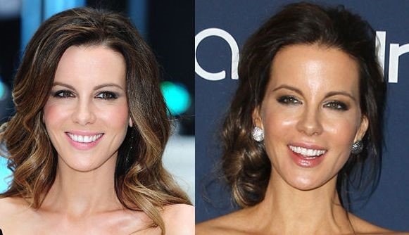 Kate Beckinsale before and after plastic surgery