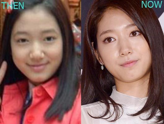 Park Shin Hye before and after plastic surgery