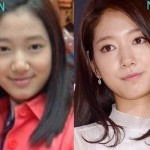 Park Shin Hye before and after cosmetic procedures
