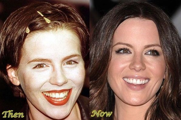 Kate Beckinsale before and after cosmetic procedure