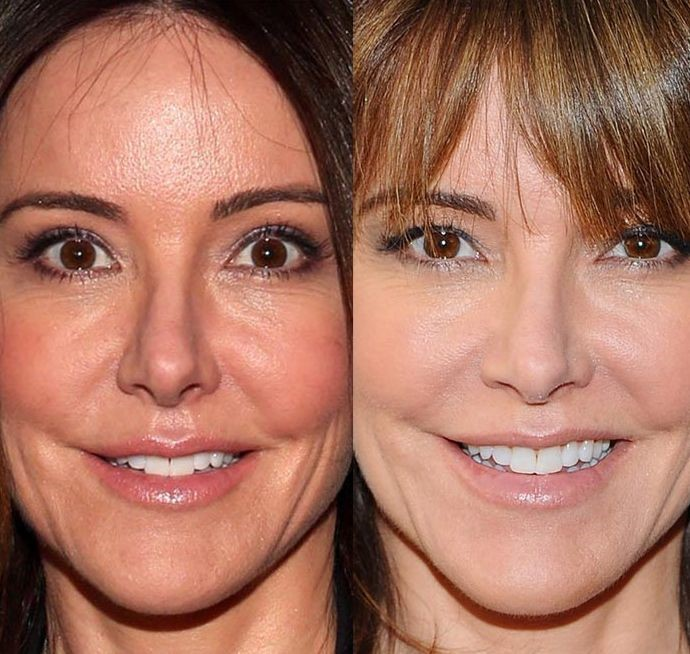 Christa Miller before and after plastic surgery