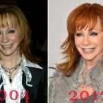 Reba McEntire before and after plastic surgery