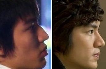 Lee Min Ho before and after nose job