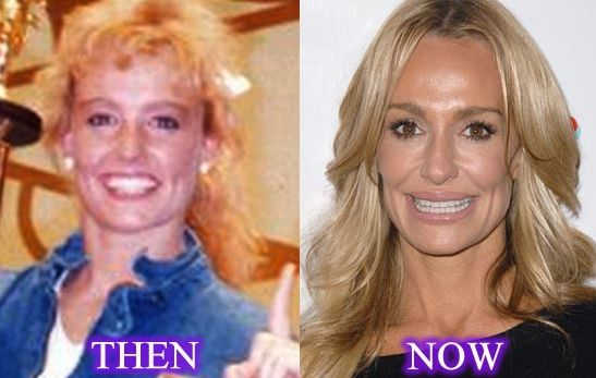 Taylor Armstrong before and after plastic surgery