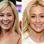 Kellie Pickler before and after plastic surgery