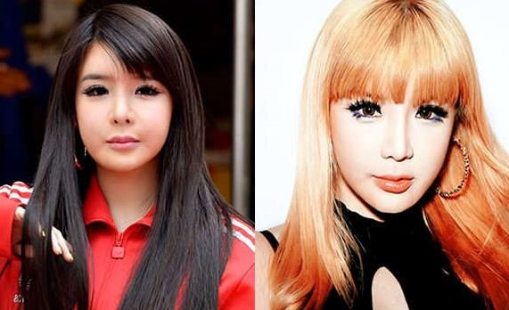 Park Bom before and after cosmetic procedures