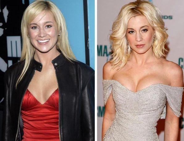 Kellie Pickler before and after breast augmentation and botox