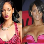 Rihanna before and after plastic surgery 1313