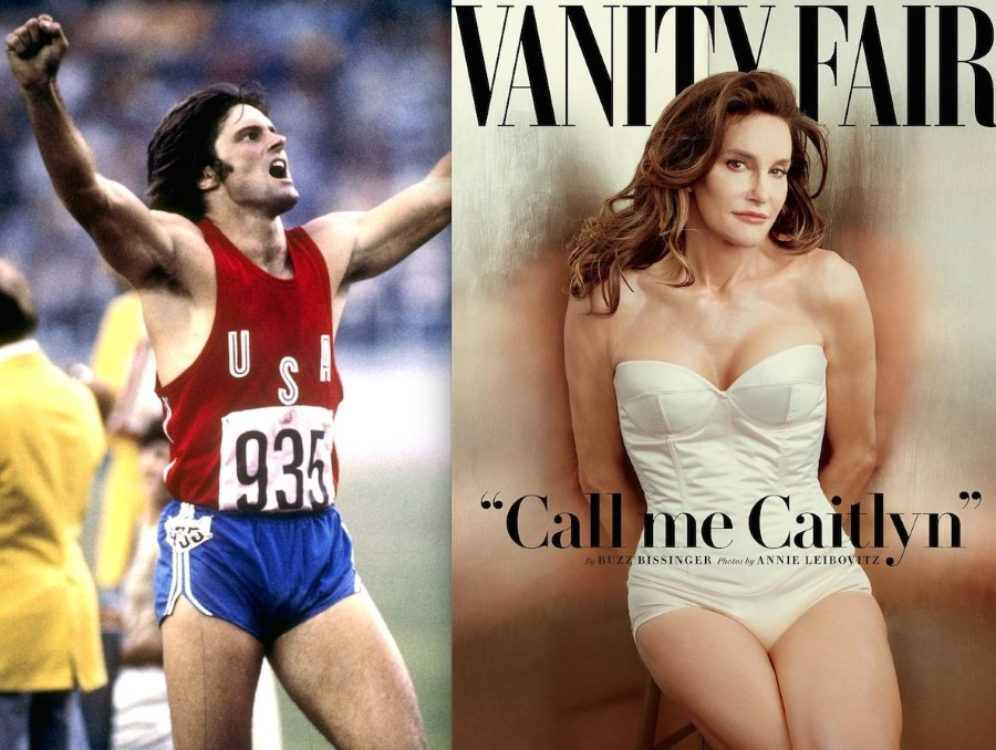 Caitlyn - Bruce Jenner before and after plastic surgery