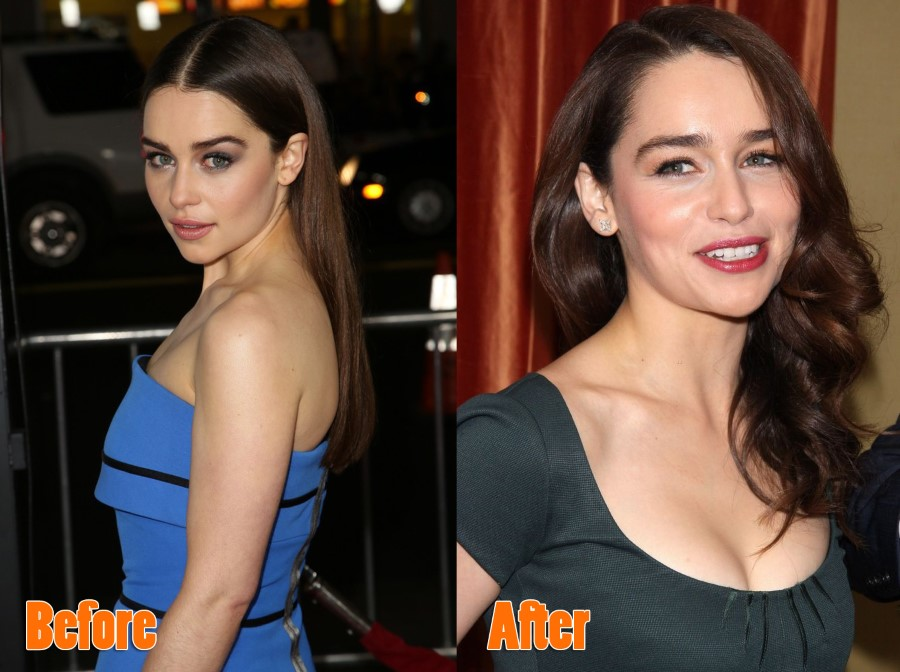 Emilia Clarke before and after plastic surgery