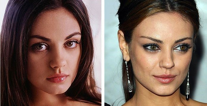 Mila Kunis before and after plastic surgery