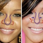 Rihanna before and after plastic surgery 117